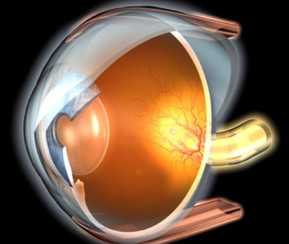 Augenarzt im Raum Neuss behandelt Makuladegeneration.