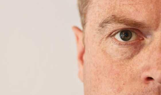 Augenarzt für Neuss / Grauer Star